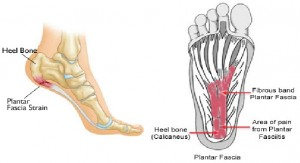 foot issue